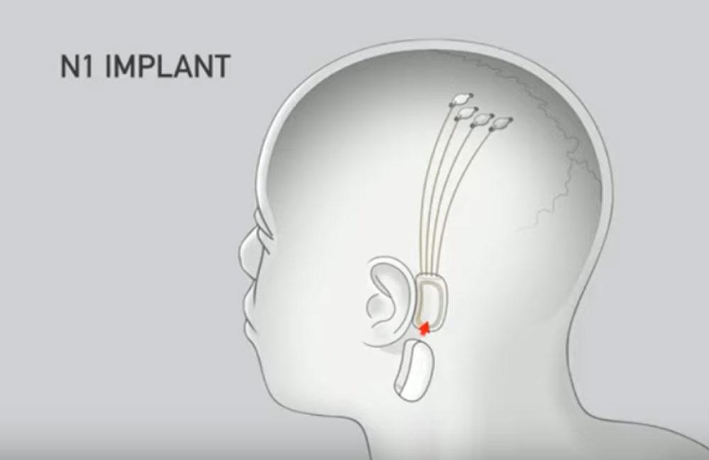 La neurología evoluciona gracias a Neuralink - Hyenuk Chu