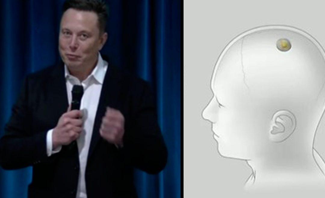 Chip De Neuralink Dominar El Cerebro Es El Nuevo Pasatiempo De Elon Musk – Hyenuk Chu